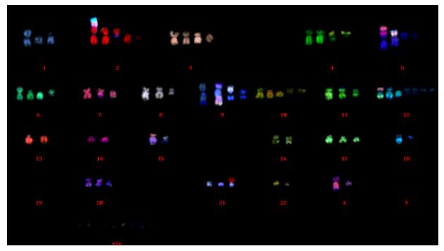 人肉骨瘤U2SO 细胞系M-FISH分析