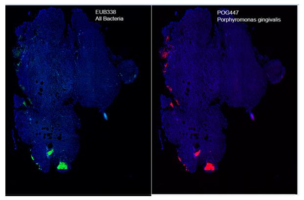 根尖周病变样本微生物FISH检测(绿色: 全细菌探针;红色:牙龈卟啉单胞菌探针)