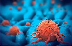 肿瘤细胞.png